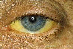 Mnohí nakazení žltačkou typu C o ochorení nevedia - Zdravie - TERAZ.sk