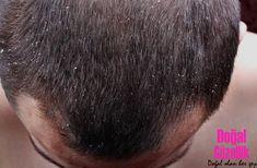 Kepeğe Karşı Bitkisel Yöntemler Şampuanlar Kullanıcı Yorumları