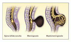 5 Facts on Mild #SpinaBifida Occulta s1 & Treatment Options