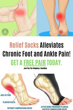 Relief Socks Alleviates Chronic Foot and Ankle Pain! Get Relief from Chronic Pain Right Now!