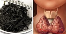 10 alimentos para fortalecer a sua tireoide e melhorar o metabolismo