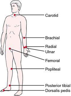 Thready pulse | definition of thready pulse by Medical dictionary
