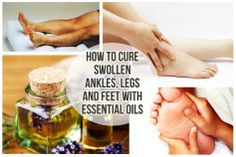 49 How To Cure Swollen Ankles, Legs and Feet With Essential Oils