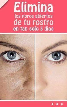Elimina los #poros #abiertos de tu #rostro en tan solo 3 dias #eliminar #remediosnaturales #mascrillas #piel