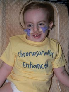 1000+ images about Trisomy 18 Edwards Syndrome on ...