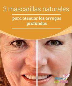 3 mascarillas naturales para atenuar las arrugas profundas  Una de las mayores preocupaciones estéticas que tienen la mayoría de las mujeres a partir de los 25 años son esas pequeñas arrugas prematuras que pueden formarse poco a poco debido a la frecuente exposición a los agentes que dañan la piel.
