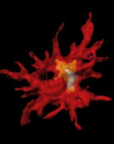 USC neurogeneticists harness immune cells to clear Alzheimer's-associated plaques  - Medical News Today