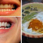 Clareamento dental caseiro que  fortalece os dentes