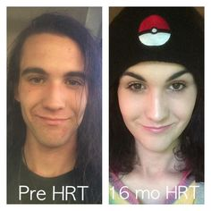 Mtf Hormones, Mtf Hrt, Mtf Before And After, Mtf Transition, Transgender Ftm, Male To Female Transformation, Trans Rights, Hormone Replacement Therapy, Strong Girls