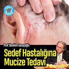 Sedef Hastalığına Mucize Tedavi | Prof. İbrahim Saraçoğlu #sedef #sağlık @faydalibilgin