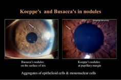 Koeppe and busca nodule... Seen in granulomatous uveitis