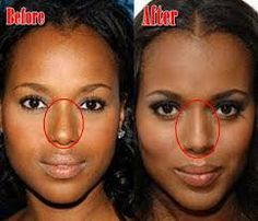 full lip injection before and after - Google Search