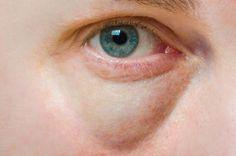 Confectionnez un sérum pour atténuer les cernes et les poches sous les yeux noté 4 - 11 votes On ne trouve pas toujours de bons remèdes naturels à appliquer pour la zone sensible du contour de l'œil. C'est donc ce que nous vous proposons aujourd'hui avec ce sérum simple à réaliser à base d'huile decalophylle....