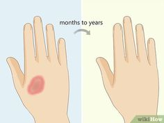 Granuloma Annulare, Types Of Rashes, Anti Inflammatory Herbs, Health Heal, Natural Medicine, Natural Remedies, Types Of Skin Rashes