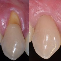 Dental abfraction is categorized as a non carious cervical tooth lesion and appears around the gum line as minuscule wedges or grooves. Smile Teeth, Teeth Care, Teeth Implants, Dental Implants, Tooth Extraction Aftercare, Dental Photos, Tooth Crown, Dental Posters, Dental Anatomy