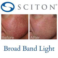 Do you suffer from embarrassing #sunspots, #redness or uneven skin tone? Sciton Broad Band Light (BBL) helps!   www.revitta.com   #revitta #manhattan #nyc  #photorejuvenation #agespots #rosacea #darkspots #skin #face #beauty #skincare #skinlaser #laser #newyork #medicalspa #clearskin #facialrejuvenation #newyorker #newyorkbeauty #newyorkstyle #lookgood #skintreatment #facial #cosmetictreatment #lasertreatment #radiantskin #myface #newbeauty Laser Skin Rejuvenation, Facial Rejuvenation, Cosmetic Clinic, Cosmetic Procedures, Cosmetic Treatments, Skin Treatments, Facial Aesthetics, Medical Spa