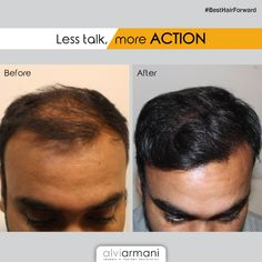 At Alvi Armani, we believe in delivering results. Come and meet us for a free consultation today! Call us: 9818642643 Hair Transplant In India, Cool Hairstyles, Meet, Fancy Hairstyles