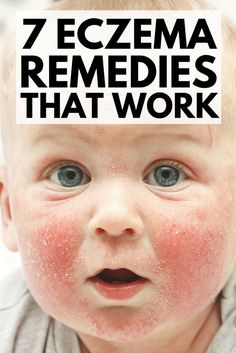 If you're on the hunt for eczema remedies that work quickly and effectively in treating dry, itchy, red, and raw skin, and that are suitabl. Psoriasis Cure, Psoriasis Remedies, Dry Skin Remedies, Natural Remedies, Health Remedies, Home Remedies For Eczema, Natural Remedy For Eczema, Health, Natural Home Remedies