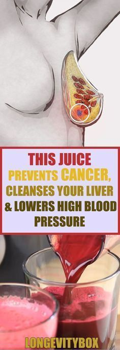 Diet Cholesterol Cure - This Juice Prevents Cancer, Cleanses Your Liver Lowers High Blood Pressure! The One Food Cholesterol Cure Cleanse Your Liver, Liver Detox, Body Cleanse, Toxic Cleanse, Cancer Fighting Foods, Cancer Cure, Cancer Cells, Cancer Foods, Health And Wellness