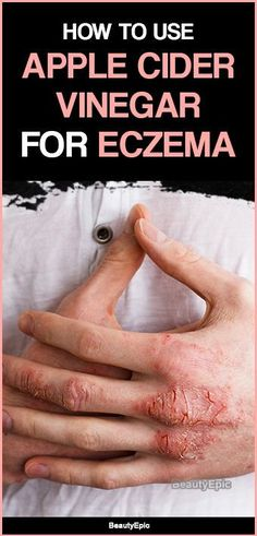 Best Ointment For Eczema. Itchy skin and eczema medication. On the list of various chronic skin disorders, eczema is among the most frequent. Home Remedies For Eczema, Natural Remedies For Arthritis, Cold Home Remedies, Natural Remedies For Anxiety, Natural Cures, Herbal Remedies, Sleep Remedies, Natural Healing, Health Remedies