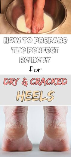 How to prepare the perfect remedy for dry and cracked heels