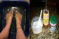 só és hó ízületi fájdalmakból enyhíti a lábujjak ízületeit