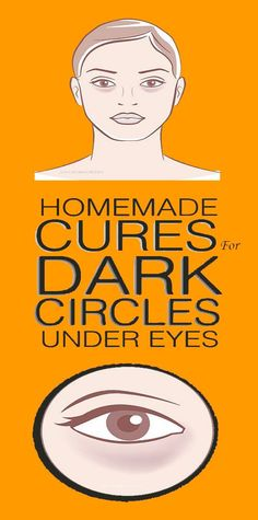 These are five natural remedies for dark circles and eye bags: remedies baking soda remedies diy home remedies skin care remedies sore throat remedies treats Beauty Tips For Face, Health And Beauty Tips, Health Tips, Beauty Hacks, Beauty Care, Beauty Boost, Face Tips, Diy Beauty, Cold Home Remedies
