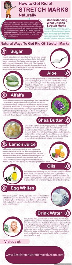 8 Ways to Get Rid of Stretch Marks Naturally ... This is fabulous!