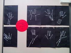 Röntgenfoto's bij het thema 'Mijn lichaam'.