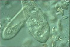 """252 million years ago, microbes almost killed all life on Earth -- because of this, Money argues that the long-overlooked, understudied microbial world is the most important facet of all life. """"The Amoeba in the Room"""" advocates for changing the way scientists think about these tiny organisms.  Event details: http://www.townhallseattle.org/nicholas-p-money-the-microbes-around-us/"""