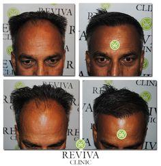 Hair Transplant Indiahttp://www.revivaclinic.com/hair-loss-men.aspx