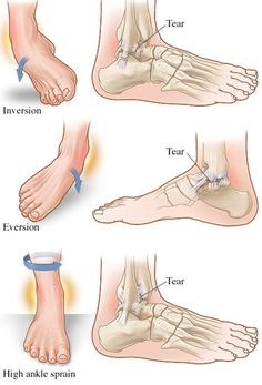 different types of hip fractures | ... , III, etc. The Different Types and Severity of Sprained Ankle Injury