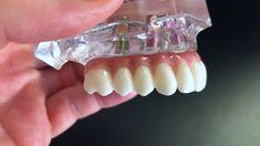 Teeth Implants, Dental Implants, Vegan Recipes Videos, Easy Healthy Recipes, Beef Recipes, Buzzfeed Food Videos, Health And Wellness, Health And Beauty, Implant Dentistry