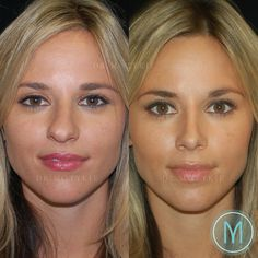 Gary motykie md facs on rhinoplasty this 28 year old twin underwent a closed scarless rhinoplasty for refinement of a large nose with a dorsal bump and ide maquillage 2018 2019 caitlin taylor Plastic Surgery Facts, Plastic Surgery Pictures, Bulbous Nose, Pretty Nose, Nose Reshaping, Rhinoplasty Before And After, Aesthetic Dermatology, Nose Surgery, Hair