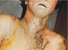 Suicide by ingestion of a caustic substance (in this case it was Lysol)