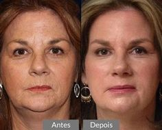 I will teach you how to make a homemade botox for the face, which will help you to reduce small lines and greatly improve the beauty . Beauty Care, Diy Beauty, Beauty Hacks, Beauty Tips For Face, Natural Beauty Tips, Healthy Beauty, Healthy Skin, Botox Lips, How To Grow Eyebrows
