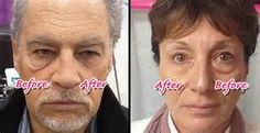 Within 2 minutes, Instantly Ageless reduces the appearance of under-eye bags, fine lines, wrinkles and pores, and lasts 6 to 9 hours. Skin Tags On Face, Skin Tags Home Remedies, Oily Skin Treatment, Under Eye Bags, Anti Aging Cream, Flawless Skin, Skin Care Tips, How To Look Better, Watch