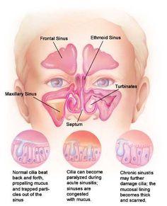 strep throat treatment steroids