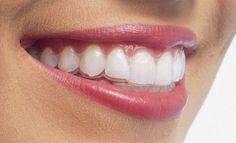 Cùng tìm hiểu niềng răng không mắc cài ở đâu tốt và uy tín để bạn có lựa chọn chính xác nhé cho mình để cải thiện hàm răng hô, vẩu không đẹp tốt nhất
