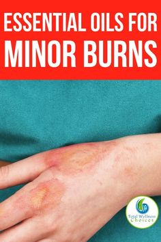 Here are the best essential oils for minor burns you will find helpful if you are looking for natural home remedies or treatment for burns. Essential Oil For Burns, Best Essential Oils, Home Remedies For Burns, Burn Relief, Easential Oils, Good Burns, Natural Health Remedies, Herbal Remedies, Holistic Healing