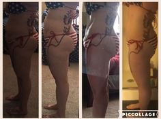 Melanie side view 9 month follow up