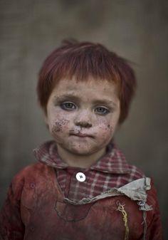 La mirada de los niños afganos refugiados. GUL BIBI SHAMRAGul Bibi Shamra, de tres años. Desde que EE UU invadiera Afganistán en 2001, provocando el desplazamiento de miles de afganos hacia Pakistán, varias generaciones de niños afganos han nacido y se han criado en los suburbios de Islamabad. (GTRES)Ver más en:http://www.20minutos.es/fotos/actualidad/la-mirada-de-los-ninos-afganos-refugiados-10171/#xtor=AD-15&xts=467263