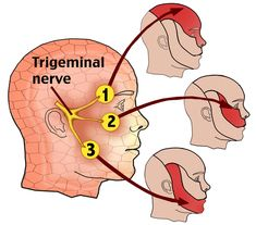Trigeminal Nerve | Trigeminal-Neuralgia, My pain is in #1