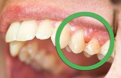 Des remèdes naturels pour les gencives et les dents