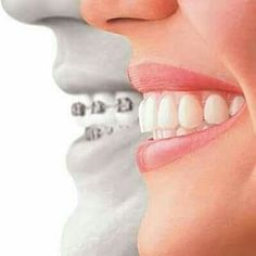 Our #invisible #braces can #straighten your #smile in fast #discreet and #affordable way. Visit us at www.javadismiles.com #Smile #beautifulsmile #oralhealth #sandiego. by javadismiles Our Dental Services Page: http://www.myimagedental.com/services/ Google My Business: https://plus.google.com/ImageDentalStockton/about Our Yelp Page: http://www.yelp.com/biz/image-dental-stockton-3 Our Facebook Page: https://www.facebook.com/MyImageDental Image Dental 3453 Brookside Road Suite A Stockton CA…
