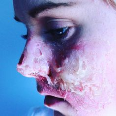 100 days of makeup DAY 15: Gelatin burn scar. #sfx #sfxmakeup #fx #fxmakeup #fxmakeupartist #makeup #beauty #mua #scar #gelatin #wound #injury #woundmakeup #burn #100daysofmakeup #100daysofmakeupchallenge @ellimacssfx @mykie_ @sfxatlas