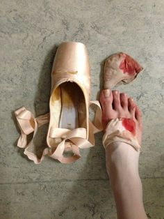 ballet, blood, dance, pain, pointe, ribbon, life of a dancer, dancer problems