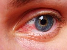 Eyes Problems Connected With Uveitis Disease