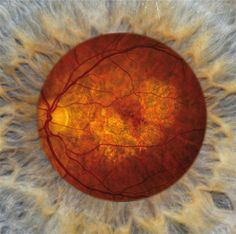 The retina of a person with geographic atrophy