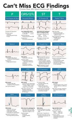 A high yield, on-shift resource to help Emergency Department providers spot subtle, high-risk ECG findings including Brugada, WPW, HCM, and ARVD. Use this card as a checklist to methodically ensure you are not missing any electrocardiographic evidence of red-flag conditions.